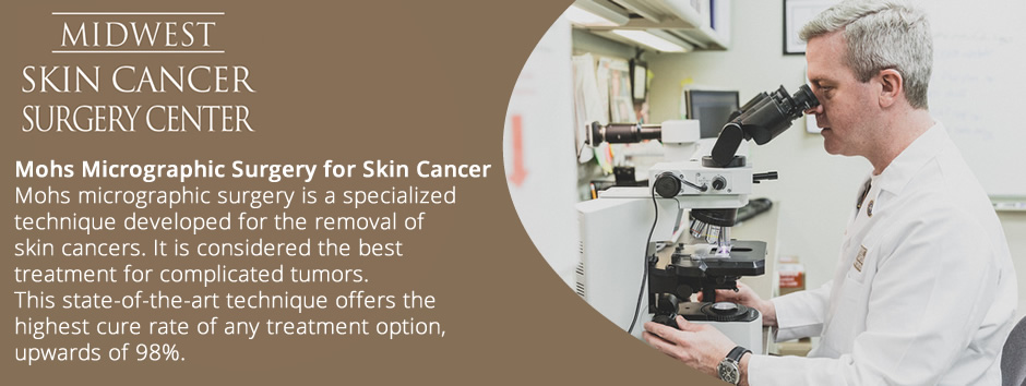Midwest Skin Cancer Surgery Center decorative images featuring Mohs micrographic surgery for skin cancer and tumors